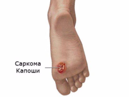 Саркома Капоши: лечение и диагностика