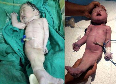 Жительница Индии родила «ребенка-русалку» (ФОТО)